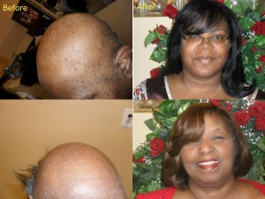 Professional Hair Replacement In Baltimore MD